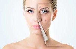 Top 8 Sai lầm khi dưỡng da khiến da mãi không thể đẹp lên